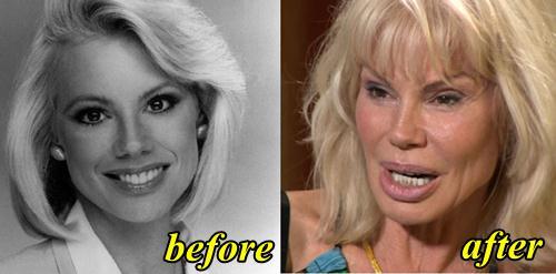 Bree Walker Plastic Surgery Gone Wrong