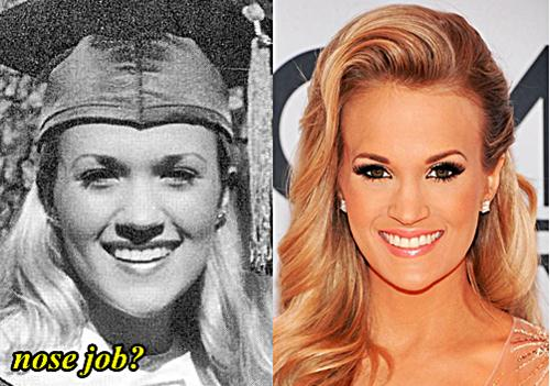 Buy Underwood Carrie nose job pictures trends