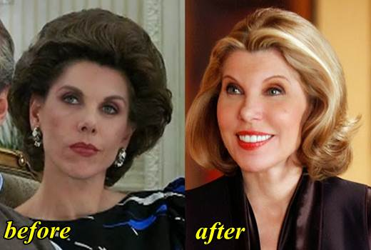 Christine Baranski Plastic Surgery Before and After