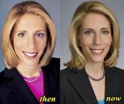 Dana Bash Plastic Surgery Before and After