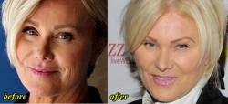 Deborra Lee Furness Plastic Surgery
