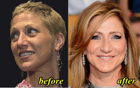 Edie Falco plastic Surgery Before and After