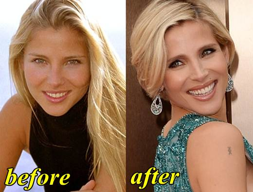 Elsa Pataky Plastic Surgery Before and After