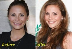 Gia Allemand Plastic Surgery Before and After