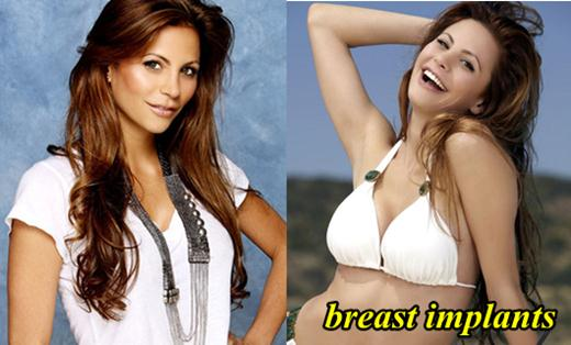 Gia Allemand Plastic Surgery Breast Implants