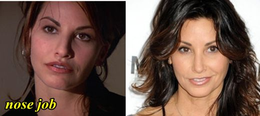 Gina Gershon Plastic Surgery Nose Job