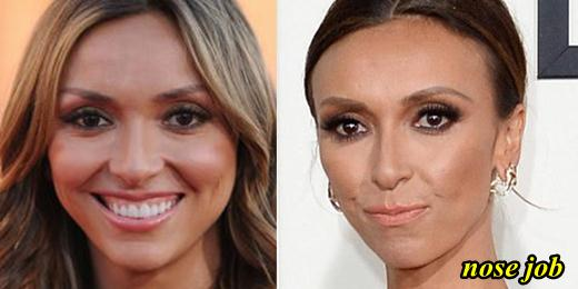 Giuliana Rancic Plastic Surgery Nose Job