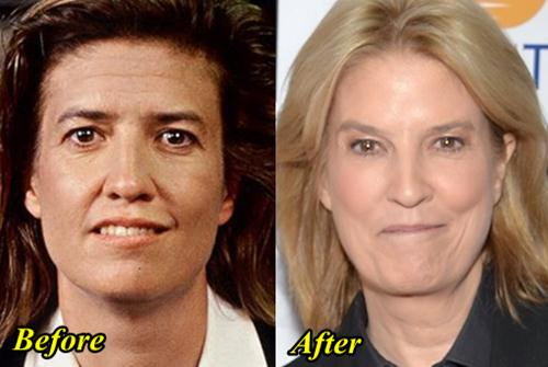 Greta van Susteren Plastic Surgery Before and After