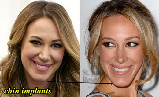 Haylie Duff Plastic Surgery Chin Implants
