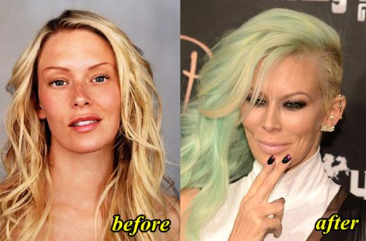 Jenna Jameson Plastic Surgery Before and After