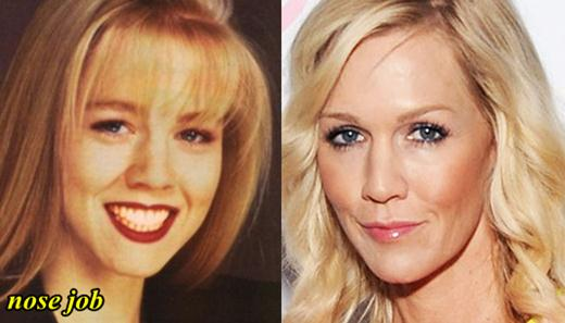 Jennie Garth Plastic Surgery Nose Job