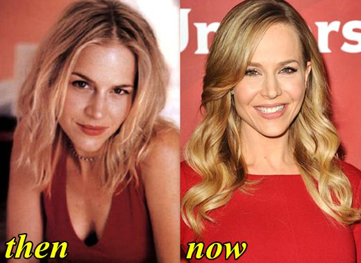 Julie Benz Plastic Surgery