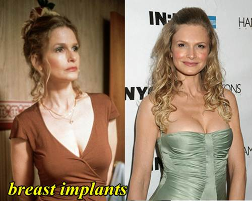Kyra Sedgwick Plastic Surgery Breast Implants