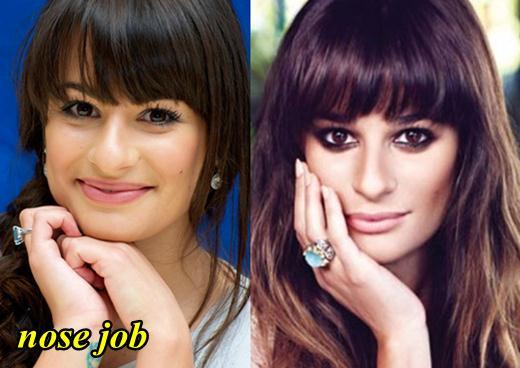 Lea Michele Nose Job