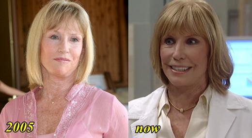 Leslie Charleson Plastic Surgery Before and After