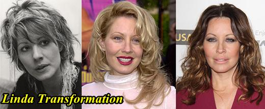 Linda Kozlowski Plastic Surgery Before and After