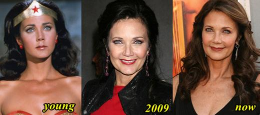 Lynda Carter Plastic Surgery