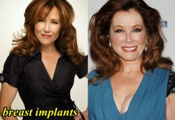 Mary McDonnell Plastic Surgery Breast Implants