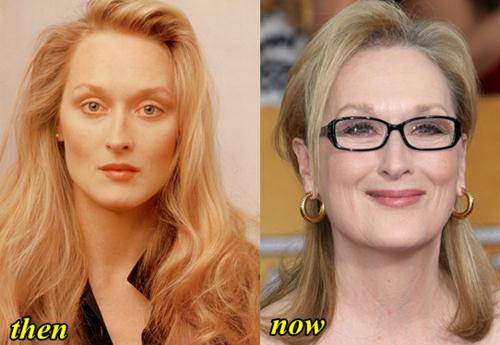 Maryl Streep Plastic Surgery Before and After