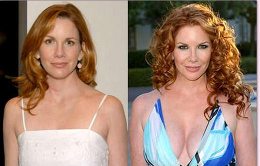 Melissa Gilbert Plastic Surgery Breast Implants