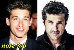 Patrick Dempsey Plastic Surgery Before After Nose Job
