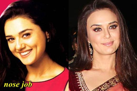 Preity Zinta Plastic Surgery Nose Job