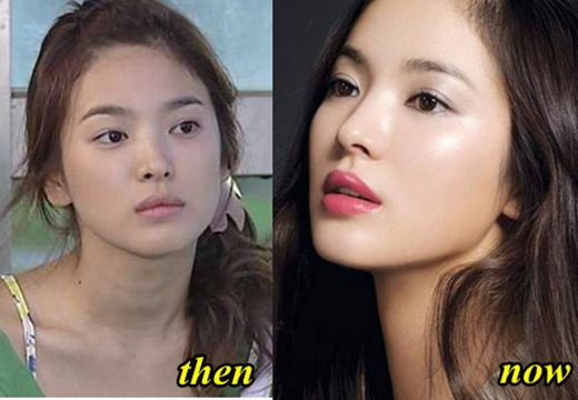 Song Hye Kyo Plastic Surgery Before and After
