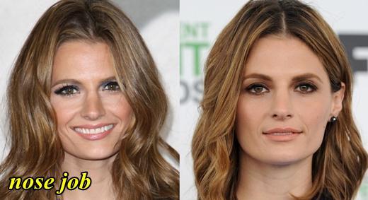 Stana Katic Nose Job Plastic Surgery