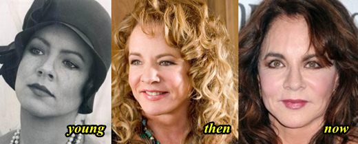 Stockard Channing Plastic Surgery Before and After