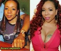 Tameka Cottle Breast Implants