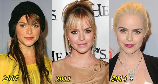 Taryn Manning Plastic Surgery Before and After