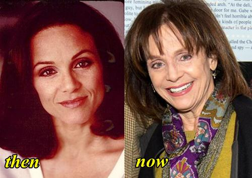 Valerie Harper Plastic Surgery Before and After