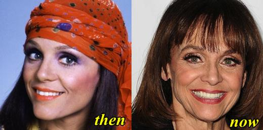 Valerie Harper Plastic Surgery