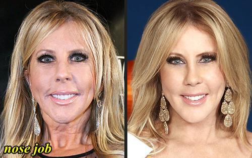 Vicki Gunvalson Plastic Surgery Nose Job