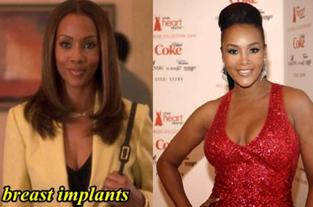 Vivica Fox Plastic Surgery Pictures, breast Implants
