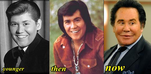 Wayne Newton Plastic Surgery Before and After