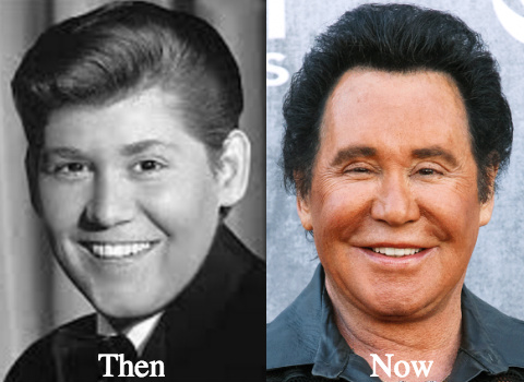 wayne-newton-nose-job