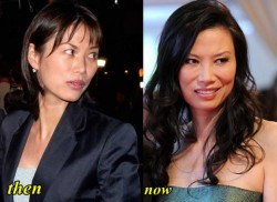 Wendi Deng Plastic Surgery Before and After