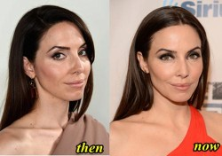 Whitney Cummings Plastic Surgery Before and After