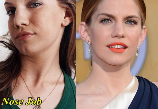 Anna Chlumsky Nose Job Before and After