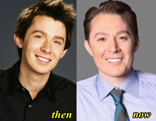 Clay Aiken Plastic Surgery Before and After