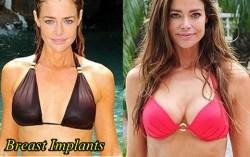Denise Richards Breast Imlants