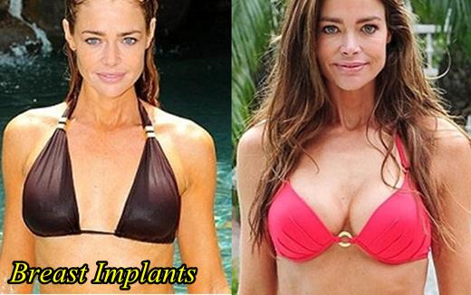 Denise Richards Breast Imlants