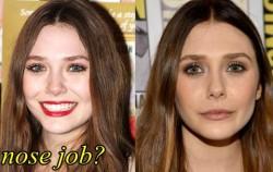 Elizabeth Olsen Nose Job