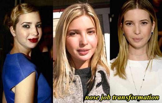Ivanka Trump Plastic Surgery Nose job