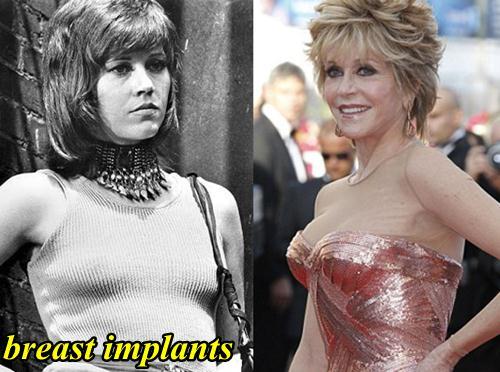 Jane Fonda Breast Implants