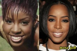 Kelly Rowland Nose Job