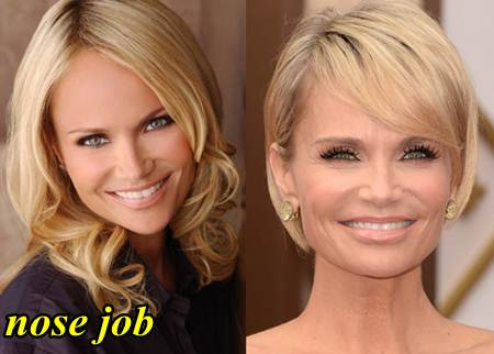 Kristin Chenoweth Plastic Surgery before and After