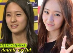 Krystal Jung Plastic Surgery