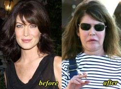 Lara Flynn Boyle Plastic Surgery Before and After